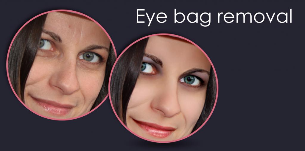 Eye-bag-removal